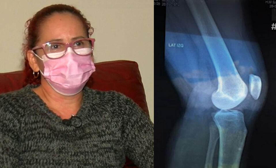 Lesión le impide caminar y en el Hospital Calderón Guardia indican que no es una emergencia